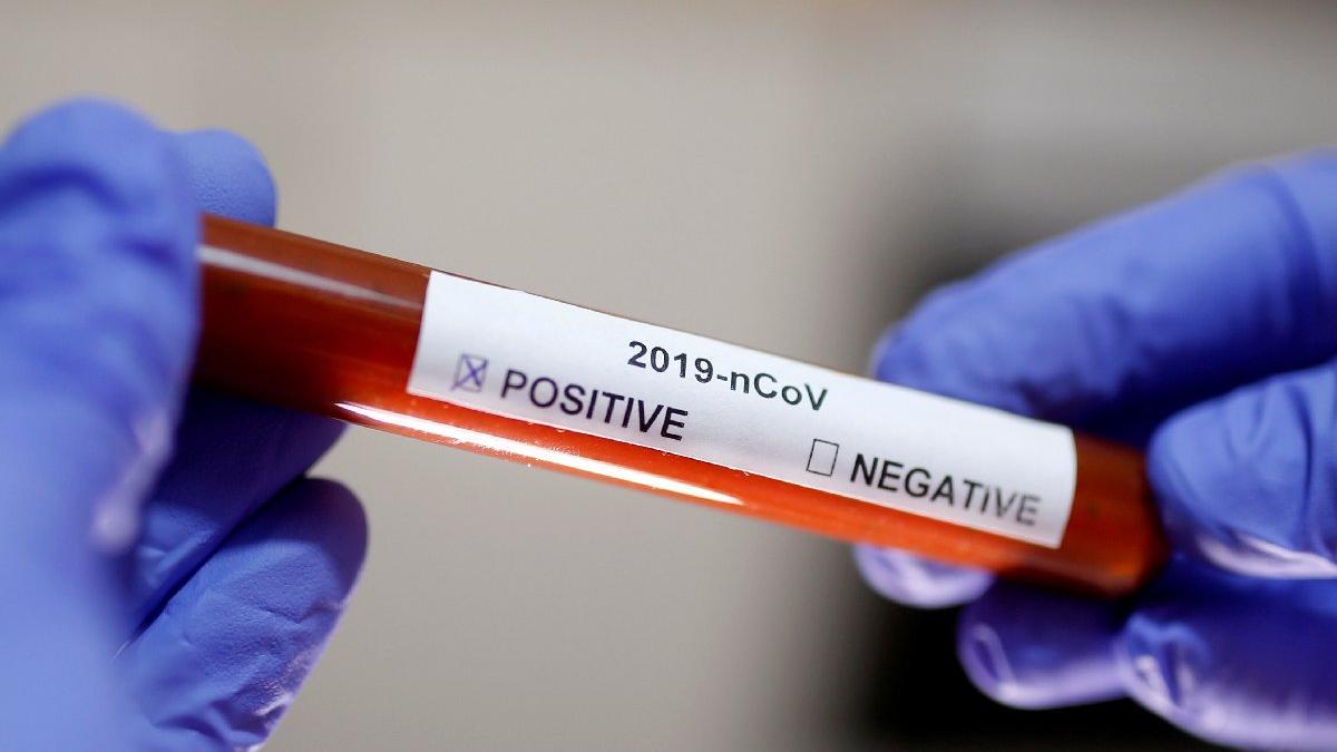 Bilim insanlarından korkutan Koronavirüs açıklaması